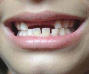 February is National Children's Dental Month